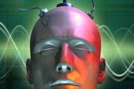 implants cerebraux brain