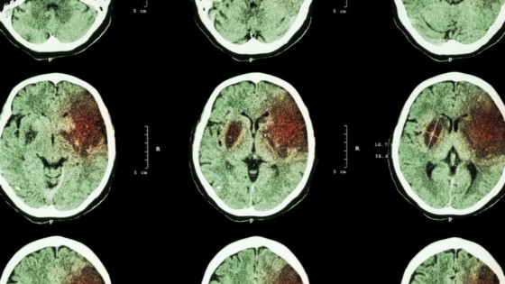 "Stanford researchers studying the effect of stem cells injected directly into the brains of stroke patients said that they were ""stunned"" by the extent to which the experimental treatment restored motor function in some of the patients. (Stanford University) Credit: Washington Post"