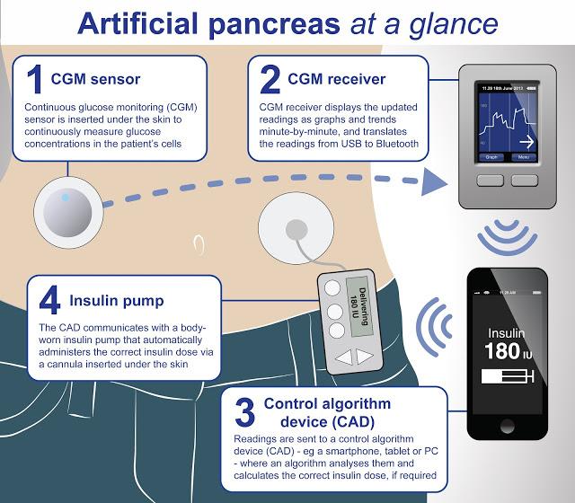 pancréas artificiel