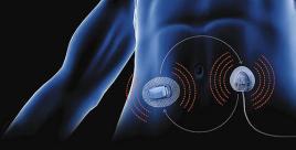 pancréas artificiel, credit: diabetes news journal