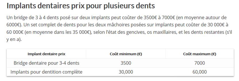 Source: http://www.dentaly.org/prix-dun-implant-dentaire-le-guide-complet/#Implants_dentaires_prix_pour_plusieurs_dents