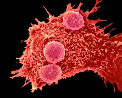 Gene-editing could improve the ability of immune cells to attack cancer. Credit: Steve Gschmeissner/Science Photo Library